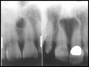 Median mandibular cyst