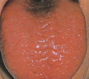 prednisone numb tongue