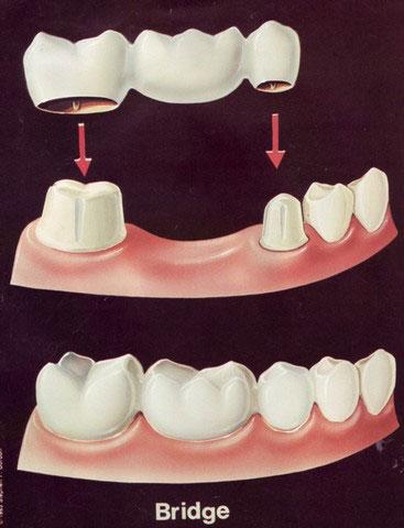 Failures In Bridge Fixed Partial Denture Intelligent Dental
