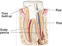 endodontic procedure 4 Single Visit Rool Canal Treatment