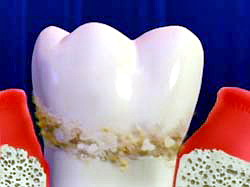 tooth tartar dental calculus What Are the Causes of Tartar on Human Teeth?