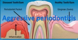 000 300x154 Aggressive periodontitis