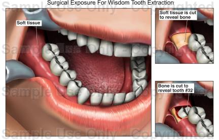 Extraction Tooth 18 Wisdom Tooth Extraction