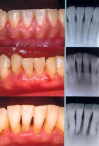 8767 1184798013 205x300 Aggressive periodontitis