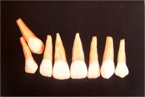 Picture16 300x201 Impacted Teeth Part 2