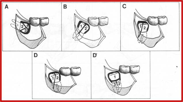 techniques for extraction of impacted lower third molars Impact of suturing techniques on the periodontal health status of mandibular  second molar after extraction of fully impacted third molars jabbar j kareem.