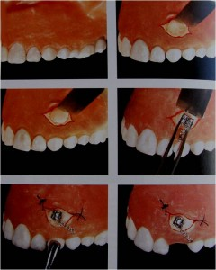 Picture73 240x300 Impacted Teeth Part 2