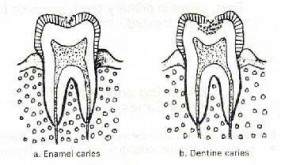 caries diagram 300x165 Hall technique part 2
