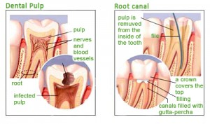 dental pulp root canal 300x177 How to Treat a Tooth Abscess