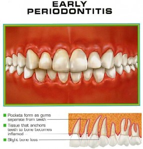 generalized1 287x300 Aggressive periodontitis