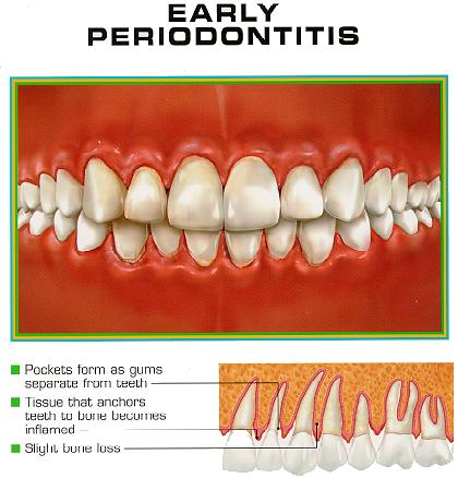 Aggressive periodontitis | Intelligent Dental