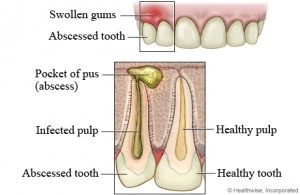h9991536 001 300x195 Dangers of an Abscessed Tooth Part 1