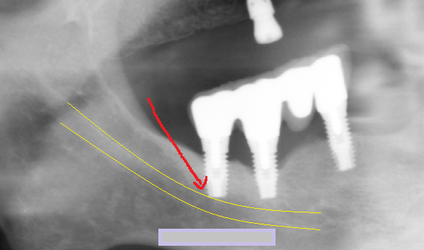 ... between the inferior alveolar nerve canal and the implant