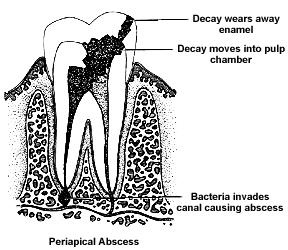 tooth3 Dangers of an Abscessed Tooth Part 1