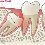 Impacted Tooth 3 150x150 Delayed eruption of teeth Part 2