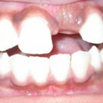 articleImg 150x150 Delayed eruption of teeth Part 4
