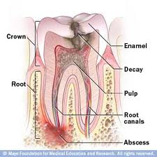 images How to Treat a Tooth Abscess