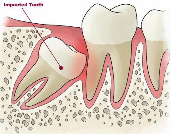 Большинство людей удаляют зубы мудрости в подростковом возрасте или в