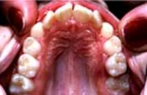 cran3 What is an Overdenture for Teeth?