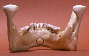 genial tubercles s 300x189 Preprosthetic Surgery: Preparation of Mouth for Dentures Part 2