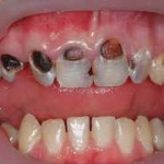 imagesCA8PEHMG 150x150 Caries diagnosis Part 1