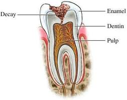 imagesCAPUQQRE Caries diagnosis Part 3