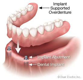 Implant Overdenture Attachments http://www.intelligentdental.com/2012/03/04/what-is-an-overdenture-for-teeth/