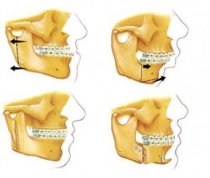jaw surgery bottom1 300x255 Orthognathic Surgery: What Is It?
