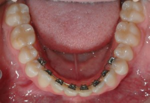 lingual 300x206 Getting Adult Braces