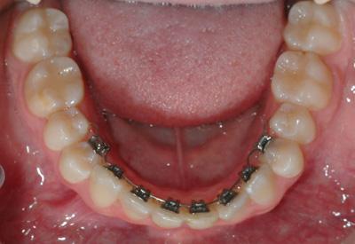 Adult Teeth Braces 7