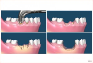 oral surgery 01 300x205 What is an Overdenture for Teeth?