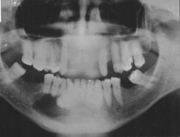 untitled10 Calcifying epithelial odontogenic tumor