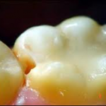 untitled25 150x150 Caries diagnosis Part 1
