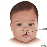 23239 150x150 Cleft lip and palate (part 1)