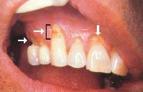 brux Causes of a Receding Gum Line