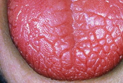 Anemia Dry Mouth 55