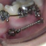 imagesCAQ1UDOR 150x150 Implantable devices as orthodontic anchorage Part 1