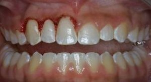 imagesCAQWCTCW 300x163 Tooth implant infection