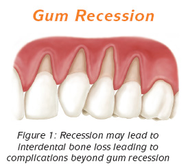 preop fig1 Causes of a Receding Gum Line