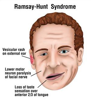 Pictures of ramsay hunt syndrome