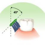 untitled5 150x150 Types of toothbrushing methods