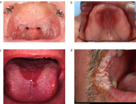 5771 16582 1 PB Oral Lesions in HIV Disease