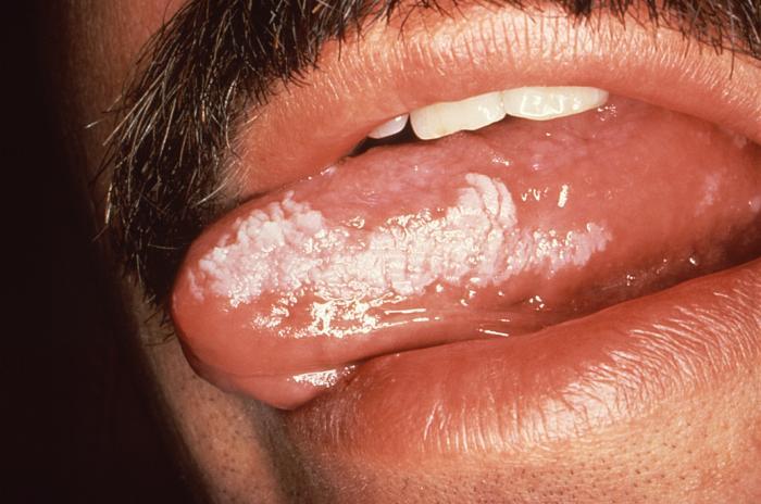 Oral Lesions in HIV Disease | Intelligent Dental