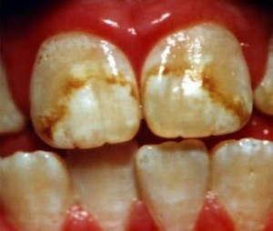 Discoloration of a Tooth 1 300x254 Why Are My Teeth Discolored? Part 1