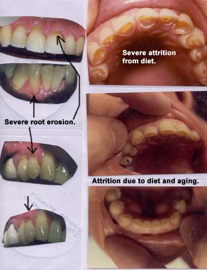 how to avoid enamel erosion