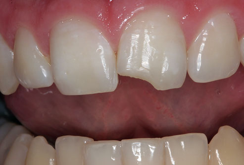 Photo of chipped tooth 300x203 tooth pain after filling part 2