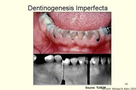 images4 Why Are My Teeth Discolored? Part 1