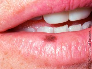 how to get rid of white patches on your tongue