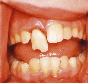 p16 emergency management medium 300x284 How to Handle Traumatic Injuries to Your Childs Teeth Part 1