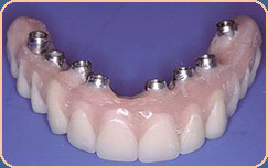 upper denture implants